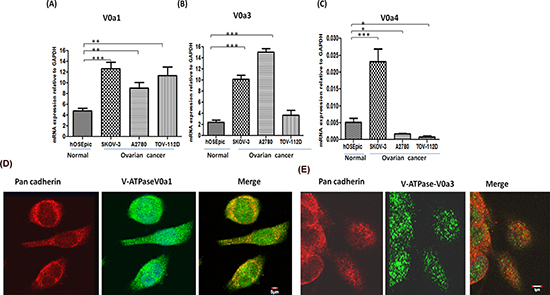 Expression profiling of V-ATPase 'a' subunit isoforms in ovarian cancer.