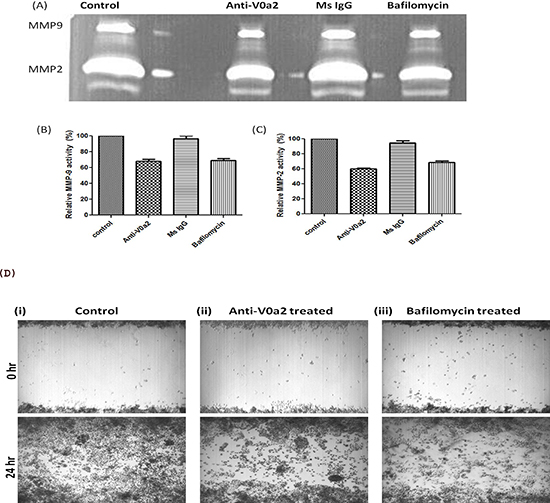 Inhibition of V-ATPase V0a2 decreases MMP-9 expression in ovarian carcinoma cells.
