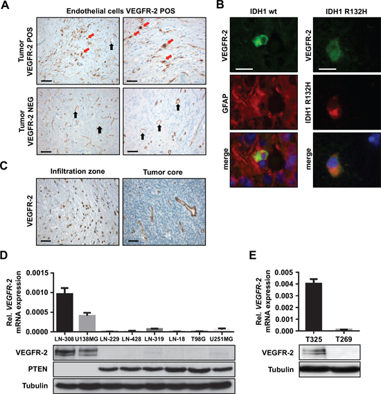 VEGFR-2 is expressed by tumor cells in a subset of glioblastoma.