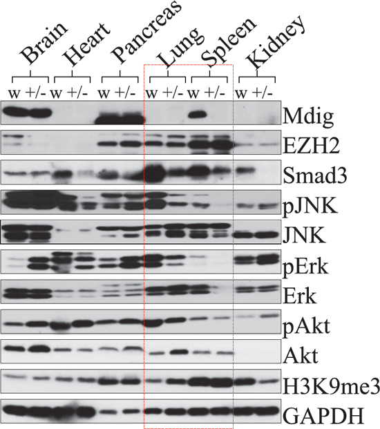 Deficiency of the mdig gene impairs smad3 expression and kinase activation in the lung and spleen.
