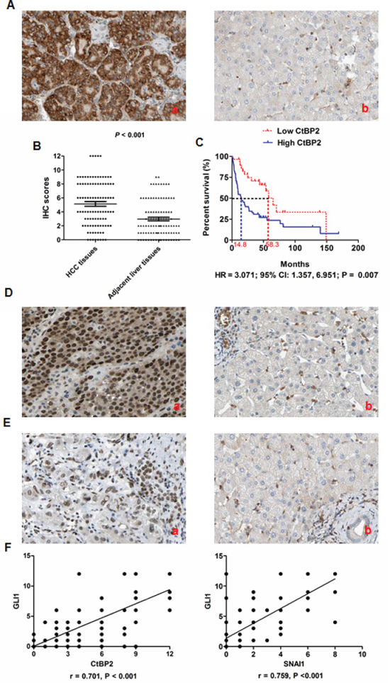 CtBP2 expression was upregulated in HCC tissues and associated with poor prognosis after liver resection.