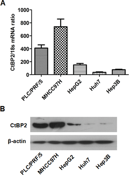 The expression of CtBP2 in HCC cell lines.