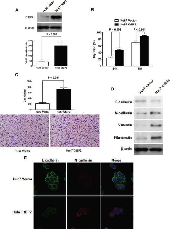 Elevated CtBP2 expression promoted Huh7 cell mobility and invasion by inducing EMT.