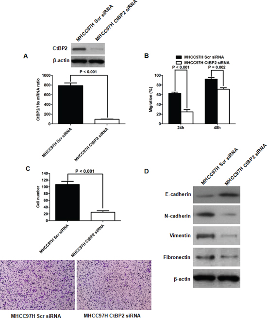 CtBP2 knockdown inhibited MHCC97H cell migration and invasion capacities by repressing EMT.