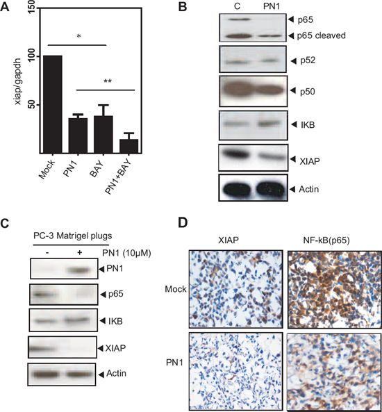 PN1 influences NF-κB-mediated regulation of XIAP in prostate tumor cells.