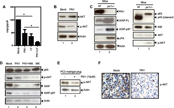 PN1 mediates XIAP stability in prostate cancer cells.
