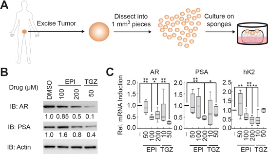 EPI-001 and troglitazone inhibit AR expression and activity in clinical prostate cancer tissues.