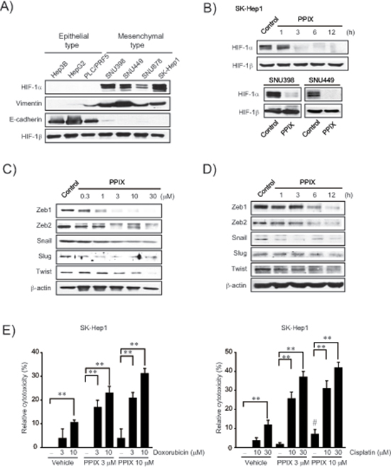 Inhibition of EMT markers by PPIX in mesenchymal cancer cell lines.