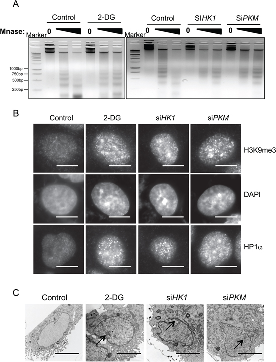 Glycolytic metabolism stimulates open global chromatin structure.