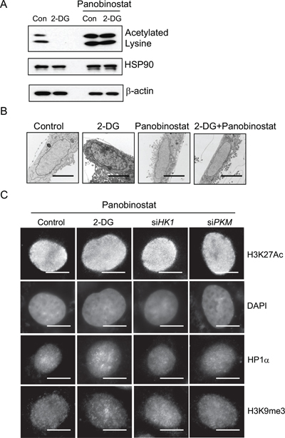 Role of histone acetylation in regulating glycolysis induced chromatin structure changes.