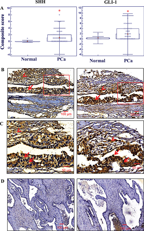 Immunohistochemical analyses of the expression levels of sonic hedgehog (SHH) and glioma-associated oncogene homolog-1 (GLI-1) in normal prostate and prostatic adenocarcinoma tissues.