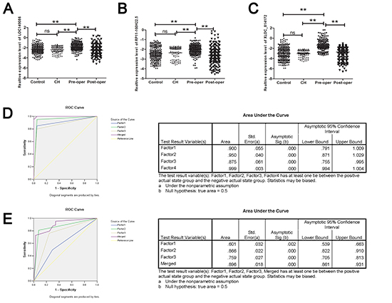 RT-qPCR and ROC curve analysis for predicting the three lncRNAs as a HCC diagnosis biomarker.