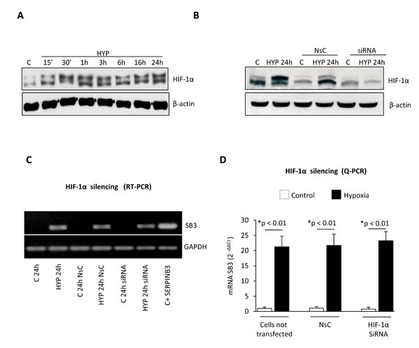 Hypoxia-dependent SERPINB3 (SB3) up-regulation is unrelated to HIF-1α.