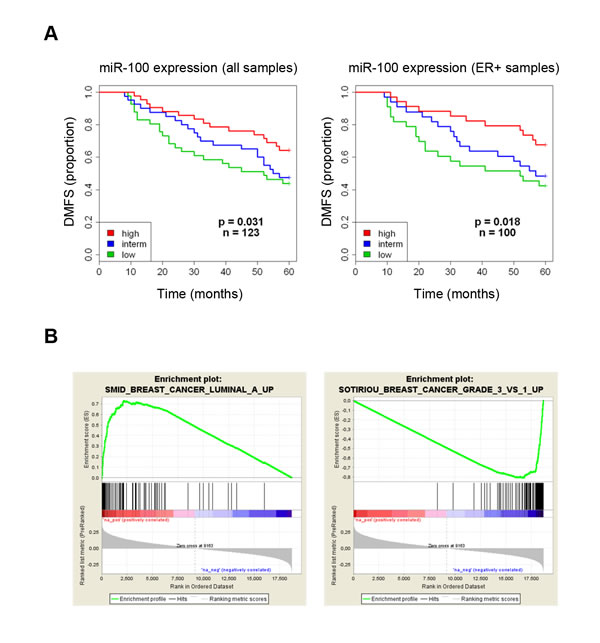Low expression of miR-100 correlates with poor prognosis and high grade tumor signatures in breast cancer patients.