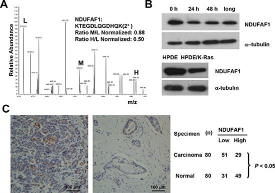 Suppression of NDUFAF1 expression by K-RasG12V and its low expression in pancreatic cancer tissues.