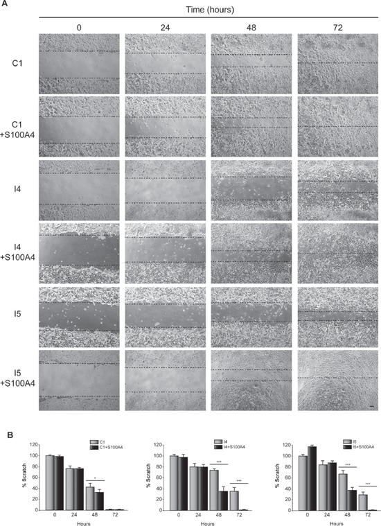 Effect of C/EBPβ and S100A4 on GL261 cells motility.