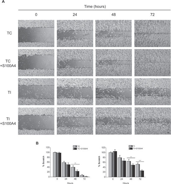 Effect of C/EBPβ and S100A4 on T98G cells motility.