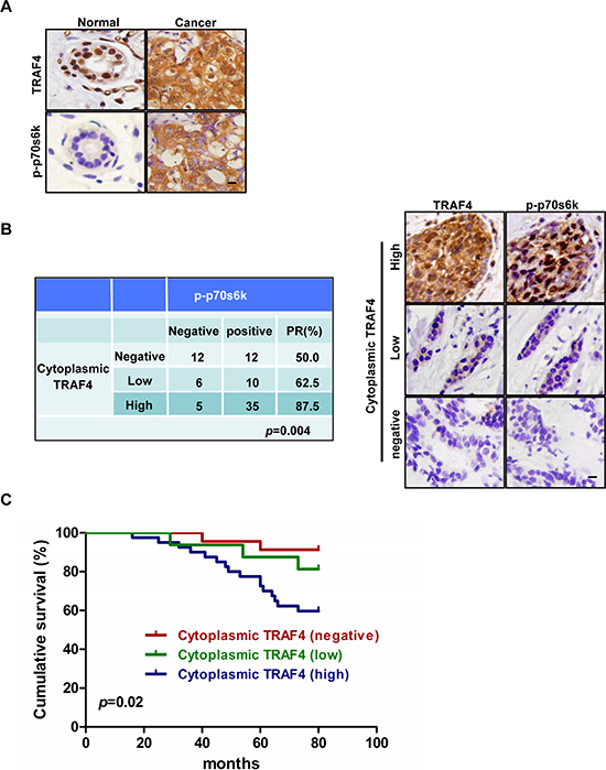 TRAF4 cytoplasmic expression correlates with activation of p70s6k and poor survival in breast cancer patients.