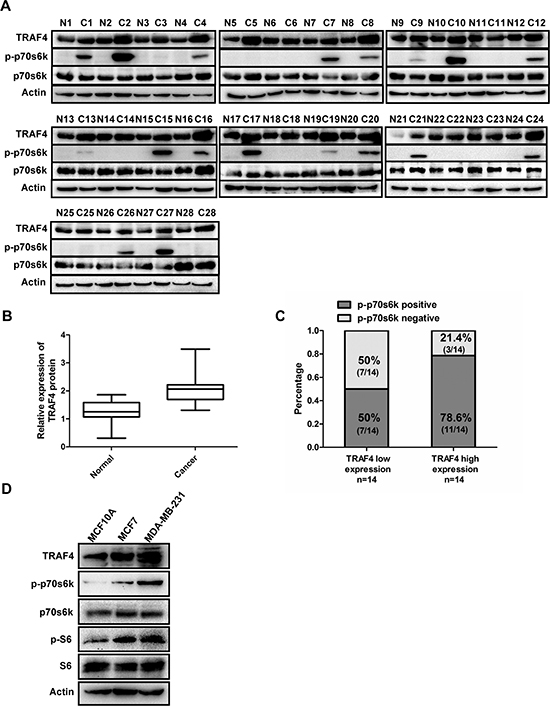 Expression of TRAF4 is correlated with p-p70s6k in breast cancer tissues and breast cancer cells.