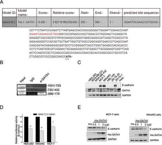 GATA1 binds to E-cadherin promoter and down-regulates E-cadherin.