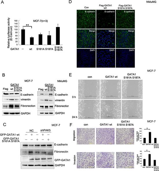PAK5-mediated GATA1 phosphorylation regulates EMT in breast cancer cells.