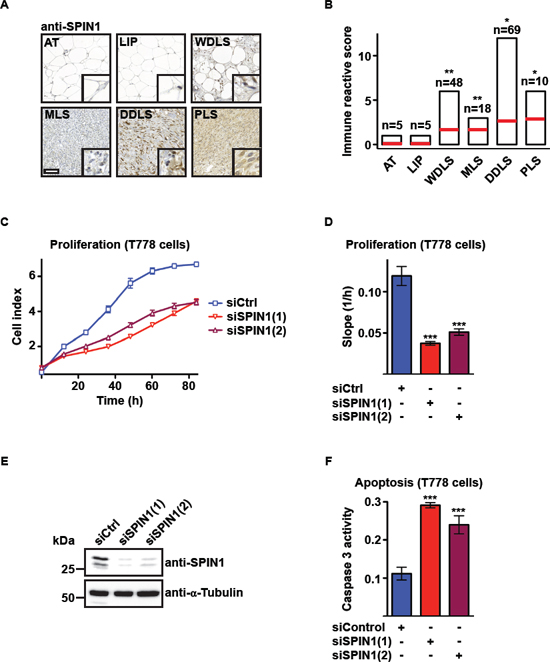 SPIN1 knockdown decreases proliferation and increases apoptosis of liposarcoma cells.