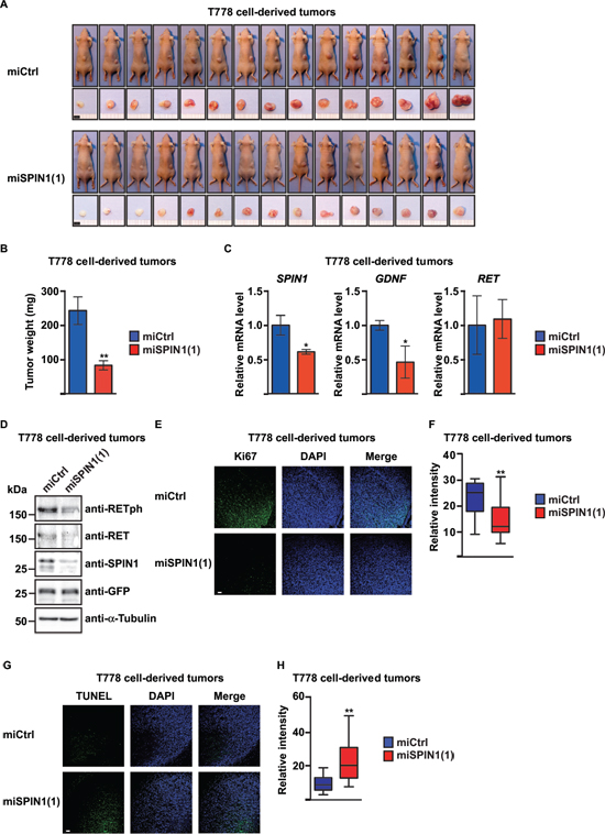 SPIN1 controls proliferation and apoptosis of liposarcoma cell-derived tumors in BALB/c nude mice.