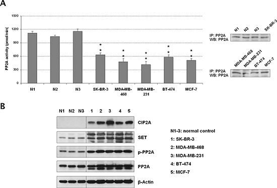The tumor suppressor PP2A is inhibited in breast cancer cell lines.