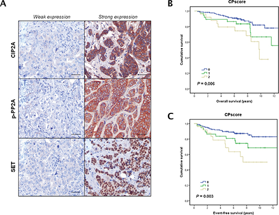 Clinical significance of PP2A phosphorylation/inhibition in breast cancer.