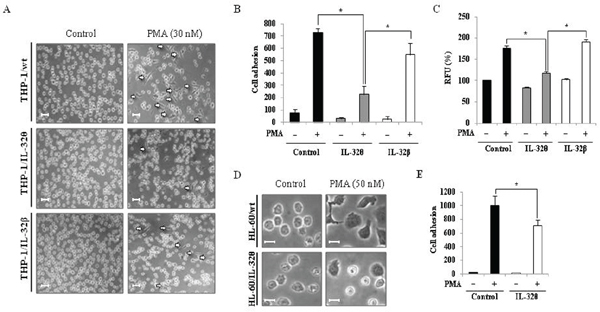Effects of IL-32θ and IL-32β expression on cell morphology and adhesion capacity in THP-1 cell lines.