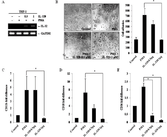Ectopic expression of IL-32θ inhibits differentiation of THP-1 cells.