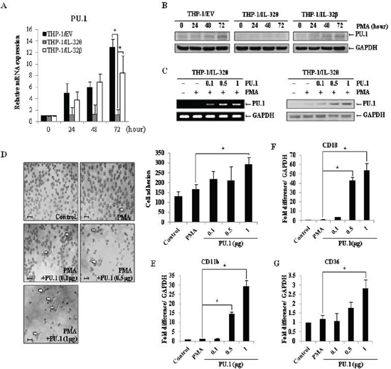 Expression of PU.1 rescues the IL-32θ-induced differentiation defect.