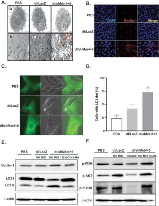 Induction of autophagy in glioma cells transduced with c-Met-specific shRNA-expressing Ad.