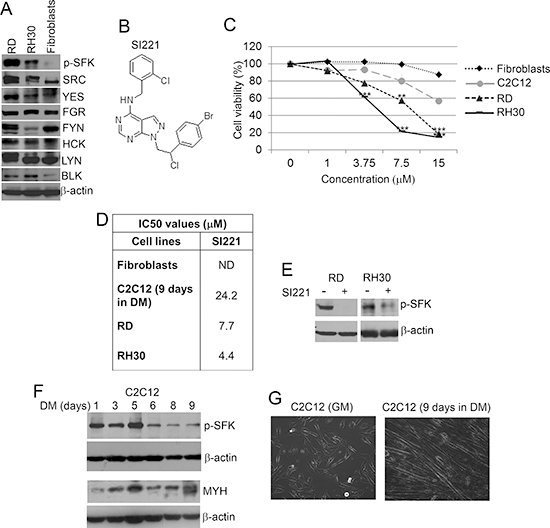 Effect of SI221 on cell viability of RMS and non-tumor cells.