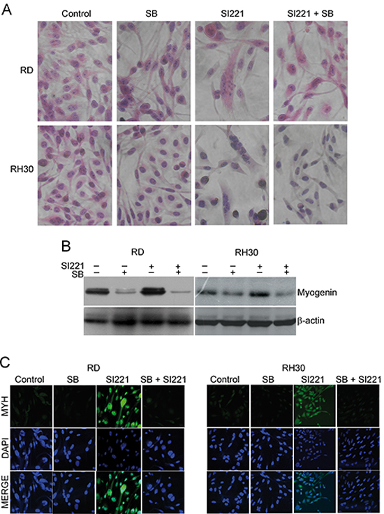 Effect of p38 MAPK inactivation on SFK inhibitor-induced RMS cell differentiation.