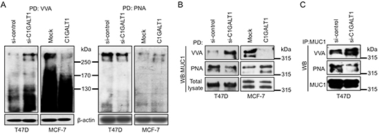 C1GALT1 regulates O-glycosylation of proteins in breast cancer cells.