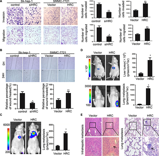 HRC promotes HCC cells migration and invasion in vitro and in vivo.