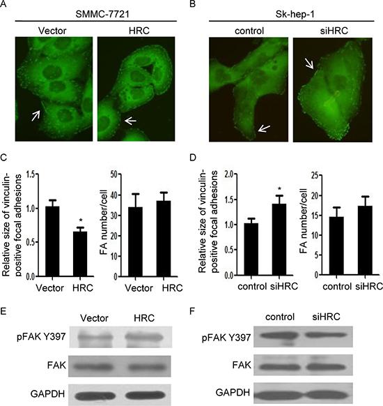 HRC modulates focal adhesion turnover.