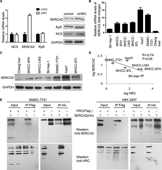 HRC increases intracellular calcium by inhibiting SERCA2.