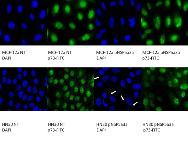 Immunostaining of HN30 and MCF-12a cells for p73 3 days post-transfection.
