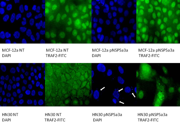Immunostaining of HN30 and MCF-12a cells for TRAF2 3 days post-transfection.