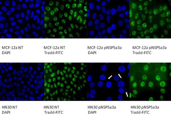 Immunostaining of HN30 and MCF-12a cells for TRADD 3 days post-transfection.