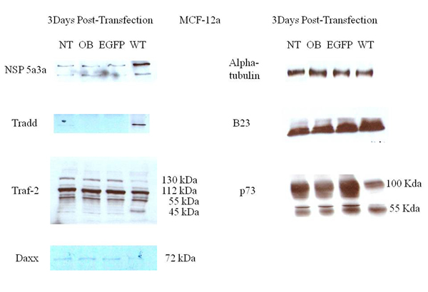 Western Blot analysis of total lysates from asynchronous MCF-12a cells 3 days post-transfection.