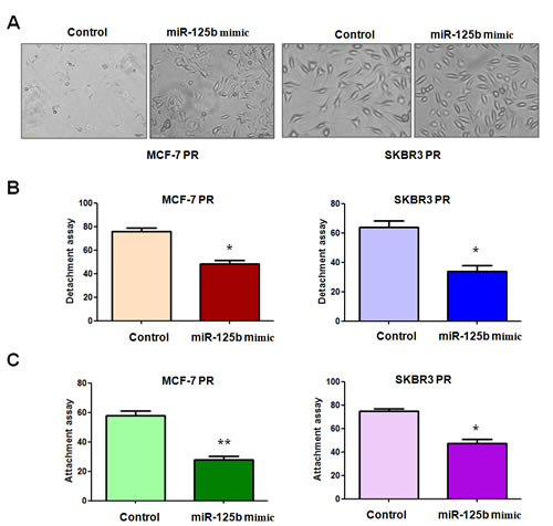 miR-125b mimc reduced the capacity of attachment and detachment in PR breast cancer cells.