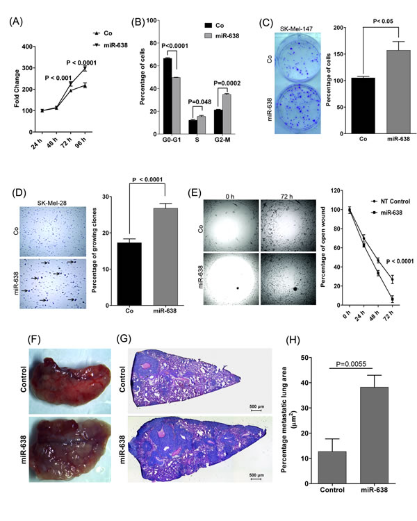 miR-638 promotes tumorigenic and metastatic properties of melanoma cells