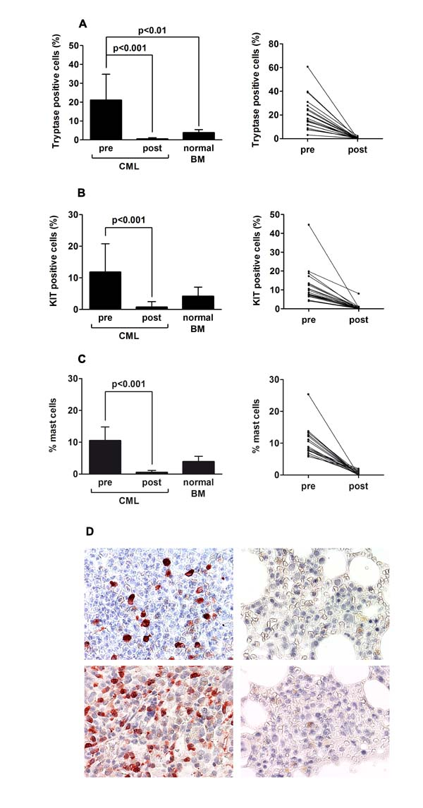 Imatinib induces mast cell deficiency in the bone marrow of patients with CML.