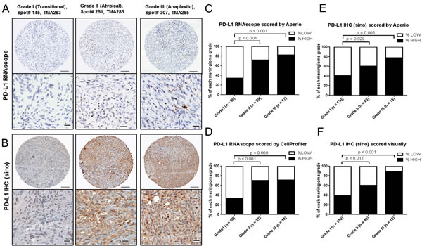 PD-L1 mRNA and protein expression in meningioma by grade.