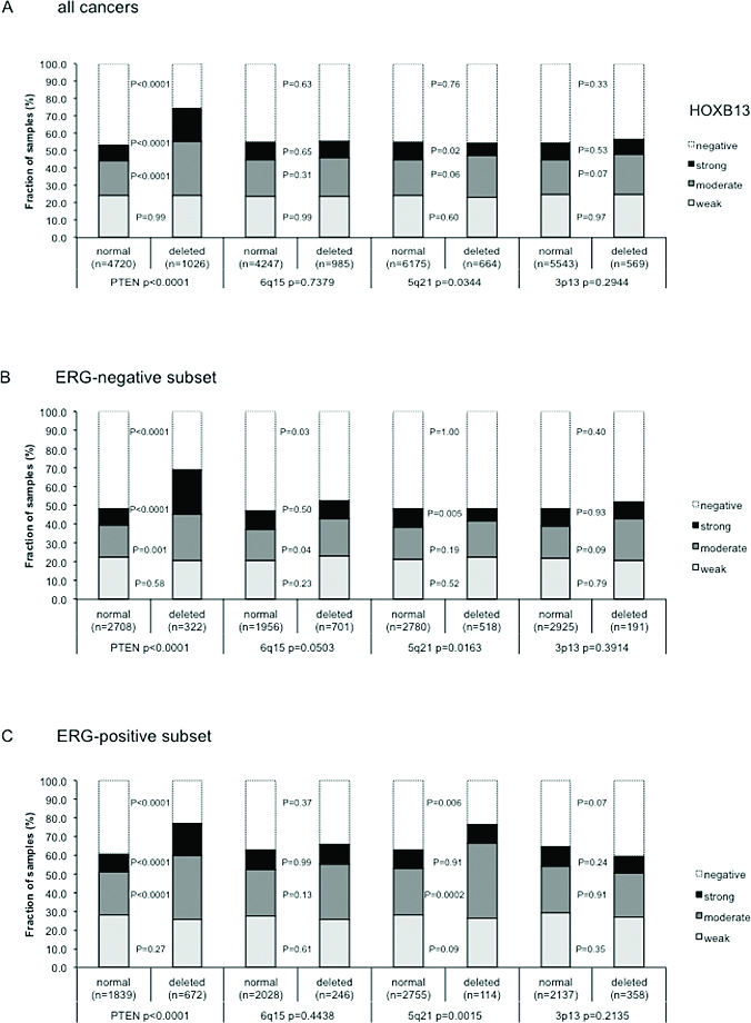 Association between TYMS immunostaining and 3p13, PTEN, 5q21, and 6q15 deletion in (a) all prostate cancers, (b) ERG negative cancers, and (c) in ERG positive cancers.