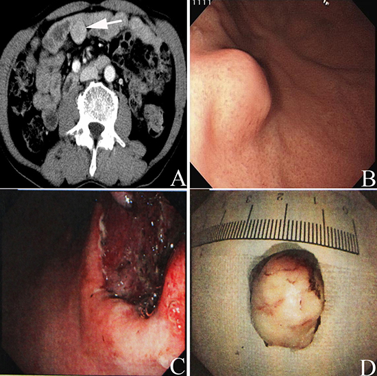 Preoperative abdominal enhanced CT scan showed a mass (white arrow in A) with a size of 3.5cm×3 cm located in the abdominal cavity in one patient with rectal cancer.
