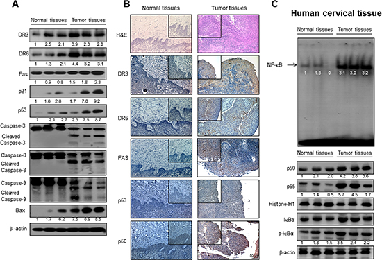 Expression of apoptosis regulatory proteins and DRs, and NF-κB activity in human cervical tissues.